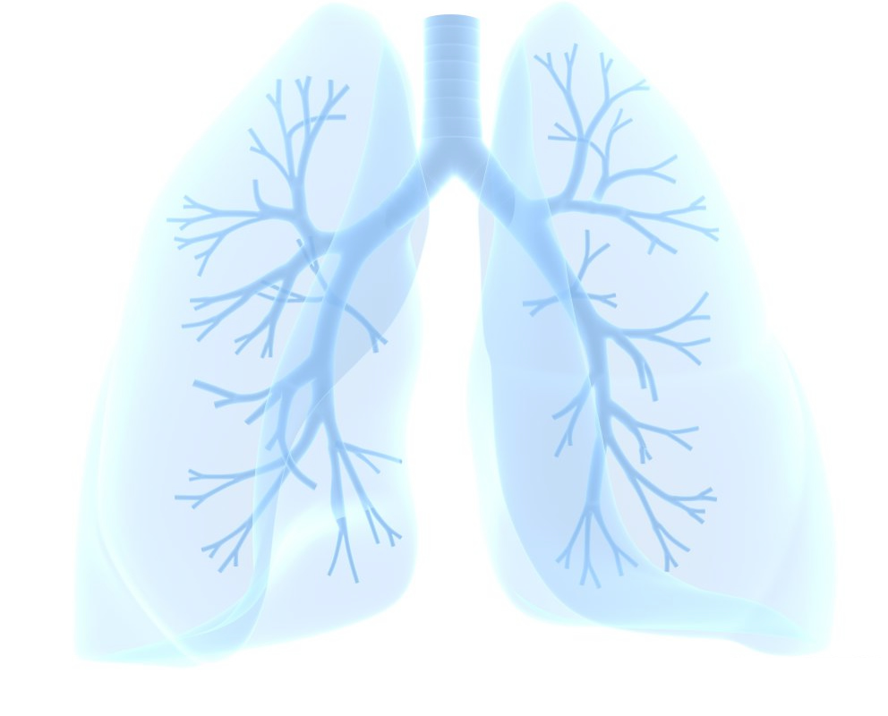 Metered Dose Inhaler, Metered Dose Inhaler (MDI)